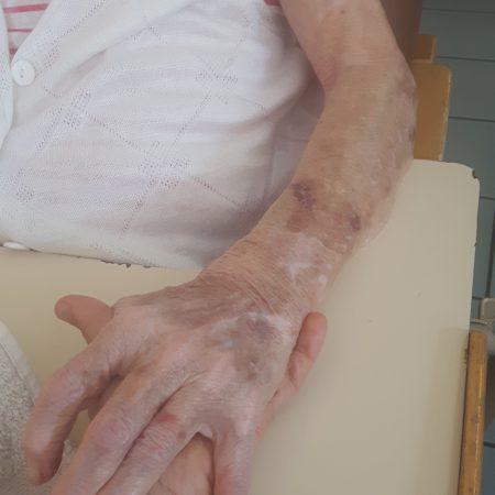 Palliatif